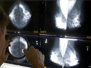 Mammograms do more good at 50, task force says
