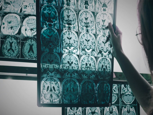 Alzheimer's Disease Will Cost Americans $277 Billion This Year